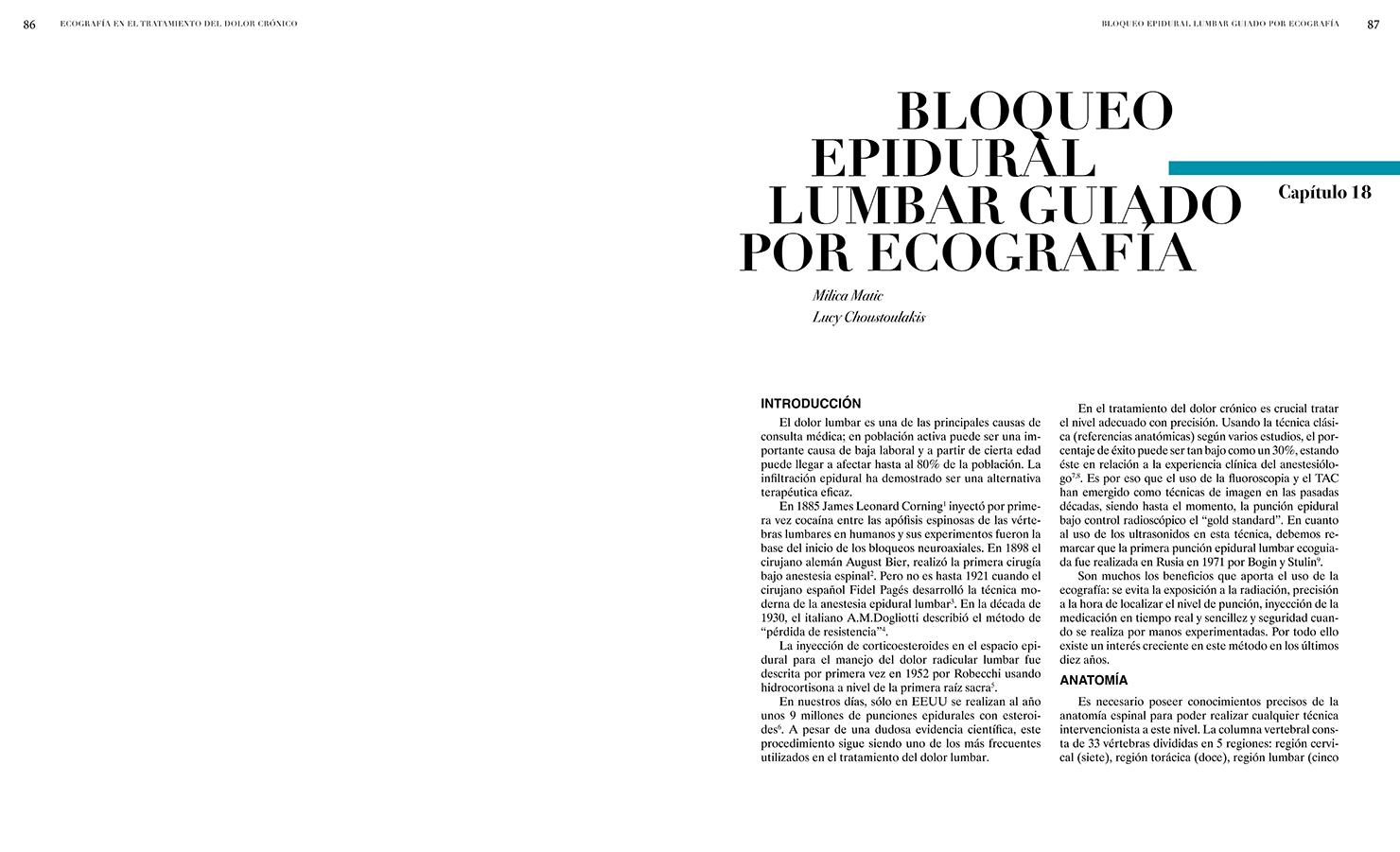 BLOQUEO EPIDURAL LUMBAR GUIADO POR ECOGRAFÍA