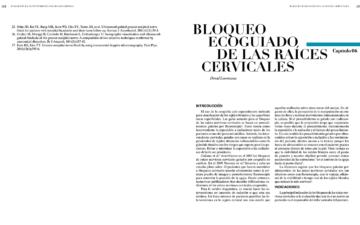 BLOQUEO ECOGUIADO DE LAS RAÍCES CERVICALES