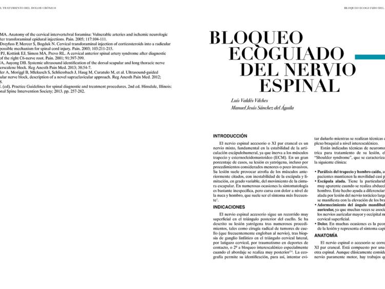 BLOQUEO ECOGUIADO DEL NERVIO ESPINAL