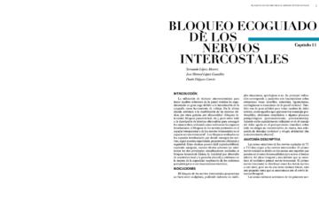 BLOQUEO ECOGUIADO DE LOS NERVIOS INTERCOSTALES