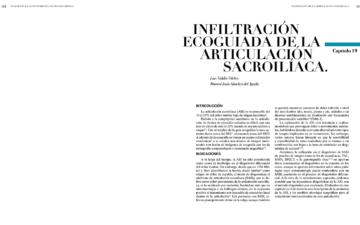 INFILTRACIÓN ECOGUIADA DE LA ARTICULACIÓN SACROILÍACA