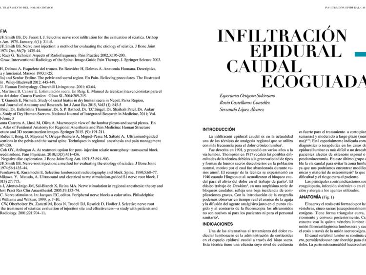 INFILTRACIÓN EPIDURAL CAUDAL ECOGUIADA