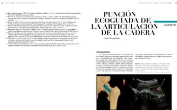 Cap. 36.- PUNCIÓN ECOGUIADA DE LA ARTICULACIÓN DE LA CADERA