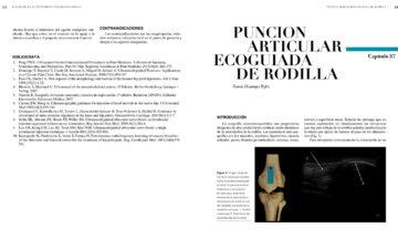 Cap. 37.- PUNCIÓN ARTICULAR ECOGUIADA DE RODILLA